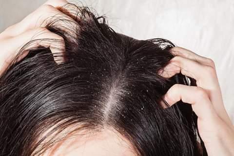اسباب قشرة الشعر وعوامل الخطر ومتى يجب زيارة الطبيب