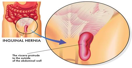 Obat Tradisional Hernia Tanpa Operasi