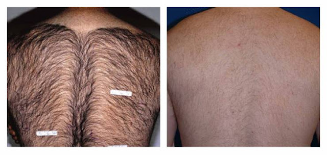 وصفة خطيرة لازالة الشعر بشكل نهائي !!  قل للشعر الزائد وداعاً!