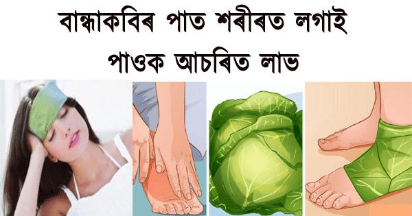 Useful Health Tips of Cabbage bandage