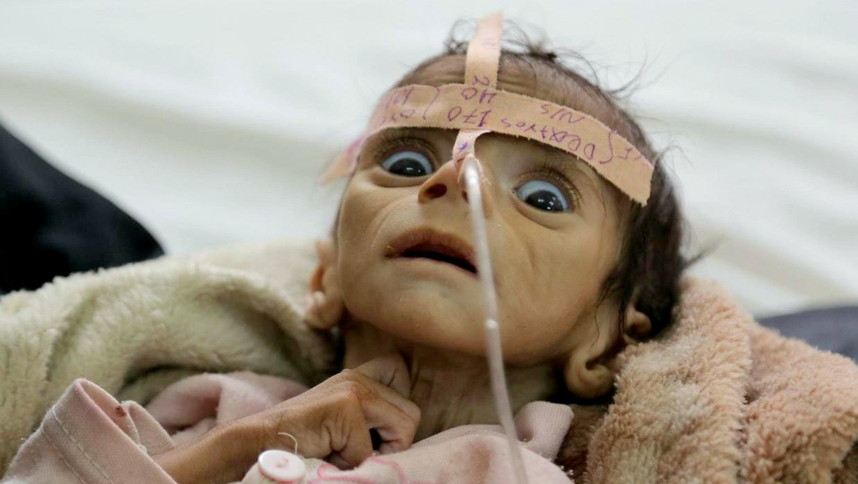 Starvation & The Forgotten War: Child Malnutrition Rates Up 200% In ...