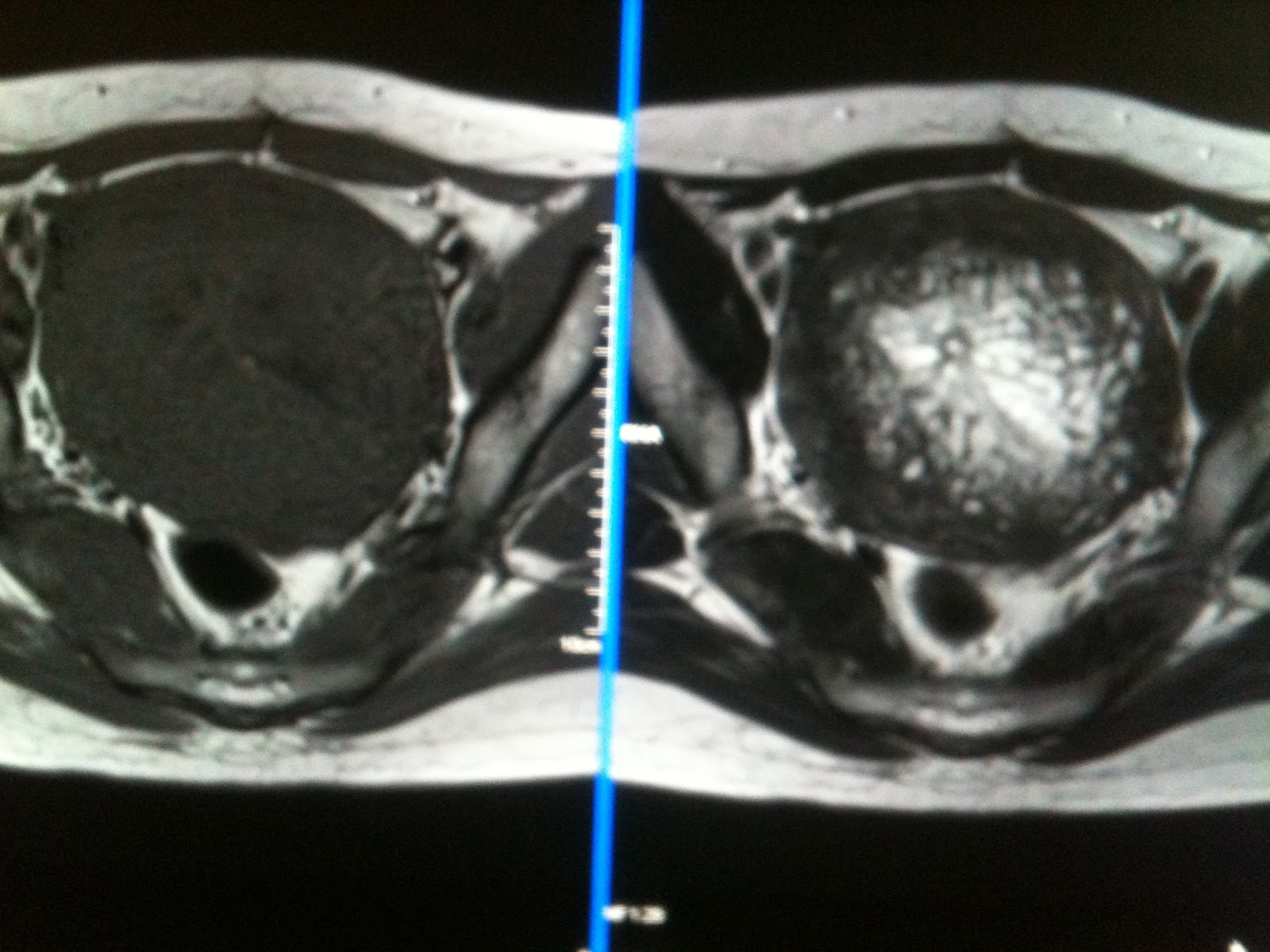 Endometrial Cancer Ultrasound Pics