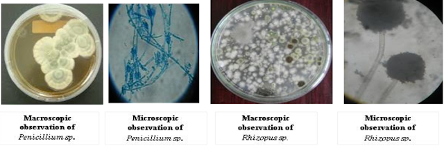 Mikroskopik Jamur, praktikum mikologi, materi mikologi, pengertian mikologi, Struktur dan Morfologi jamur, hifa jamur, Septa jamur, hifa senosit adalah, miselium adalah, koloni jamur, Koloni ragi, Koloni menyerupai ragi, Koloni filament, hifa jamur, Hifa vegetatif, Hifa udara, Hifa produktif, Spora seksual, Spora aseksual, tekstur jamur, garis kosentris jamur
