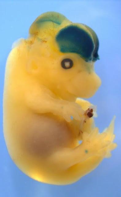 Embrio tikus dengan otak yang besar