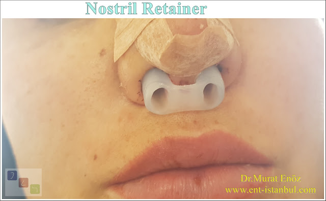 Nostril Retainer (Nose Shaping Apparatus)