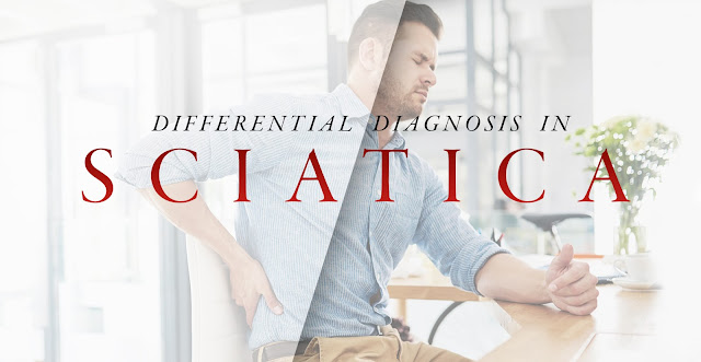 Differential Diagnosis in Sciatica Part 2 | El Paso, TX Chiropractor