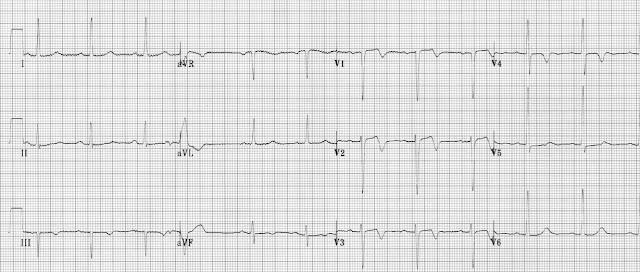 """Wellens' syndrome (""""LAD T-wave pattern"""")"""