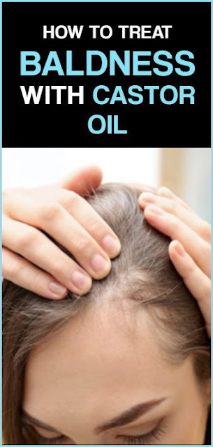 7 Reasons Why Castor Oil Can Treat Baldness