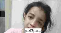 التقرير الطبي للطفلة اية التي عذبها والدها حرقا وضربا بشفرة حادة
