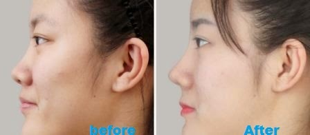 Tips How to Make Sharp Nose Naturally