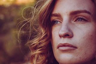 8 Kebiasaan Buruk  Yang Bisa Memicu Timbulnya Jerawat