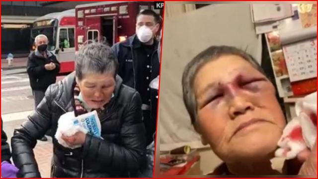 Kebencian ke Orang Asia Semakin Tinggi, Wanita China Lansia Diserang Sampai Bonyok di AS