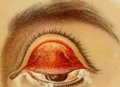 Trachoma Eye , Trachoma Treatment , Causes of Trachoma , Signs of Trachoma