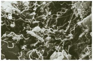 "<Imgsrc =""micro-barrido-biopelicula.jpg"" width = ""310"" height ""205"" border = ""0"" alt = ""Imagen microscópica de la placa dental  o biopelícula."">"