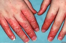 Gambar Mengapa Gatal Bagian kulit memerah yang terasa tebal, kering, dan bersisik dan obatnya