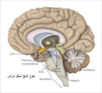 الأرق أسبابه وعلاجه وانواع اضطرابات النوم المختلفة