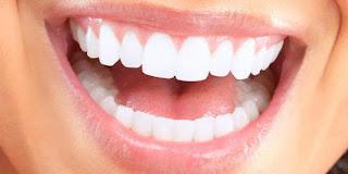 Cara-Memutihkan-Gigi-Dengan-Cepat-Dan-Murah