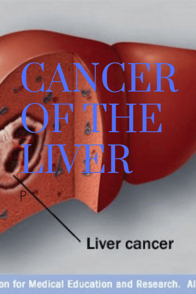 Cancer of the Liver, the Malignant Disease