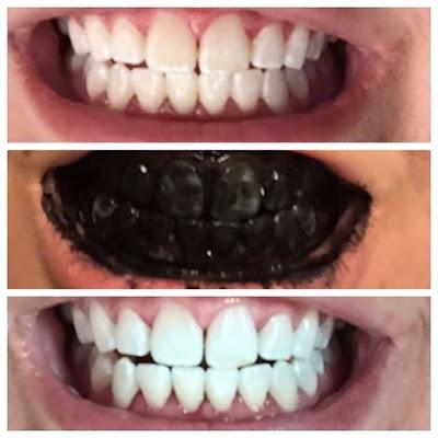 Comment blanchir les dents avec des ingrédients naturels
