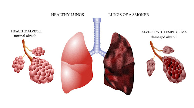 lung wellbeing