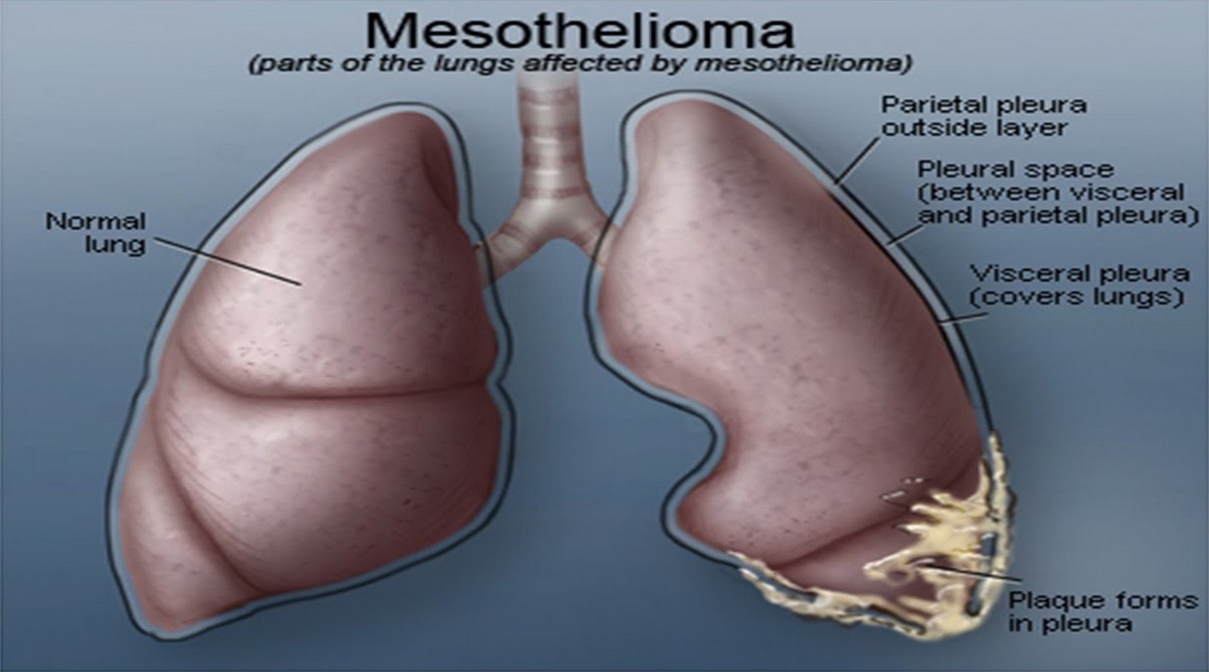 the nuiances of define mesothelioma cancer