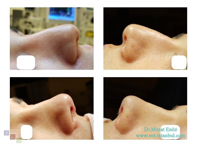Nose Tip Plasty in Women, Nose Tip Aesthetic Surgery in Female, Nose Tip Lifting,Droopy Nose Tip Aesthetic in Istanbul, Sarkık Burun Ucu Estetiği