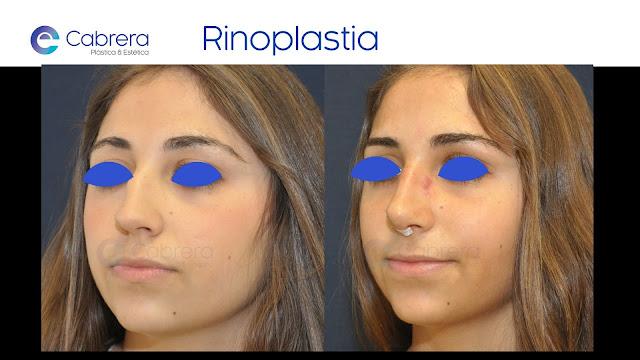 punta nasal en rinoplastia cirugía plástica