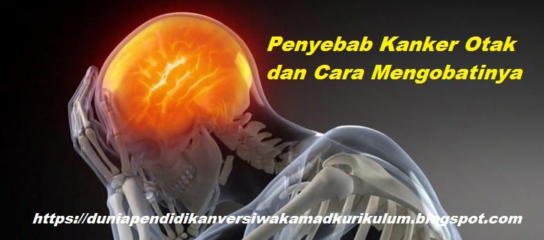 Penyebab Kanker Otak dan Cara Mengobatinya. - DUNIA PENDIDIKAN