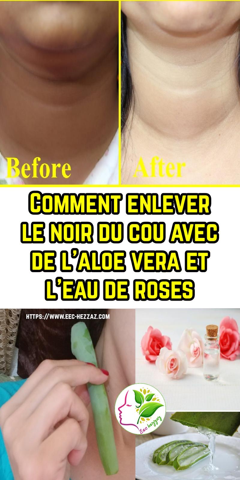Comment enlever le noir du cou avec de l'aloe vera et l'eau de roses