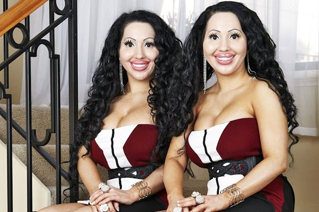 Эти девушки потратили около миллиона на операции, чтобы быть похожими на кукол