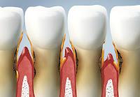 Maladie parodontale: Causes, symptômes et traitement
