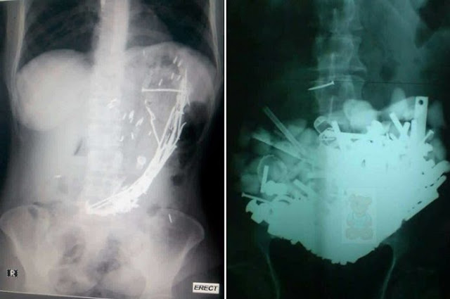She was rushed to the hospital because of extreme pain in her stomach. Her discovery was HORRIFYING!