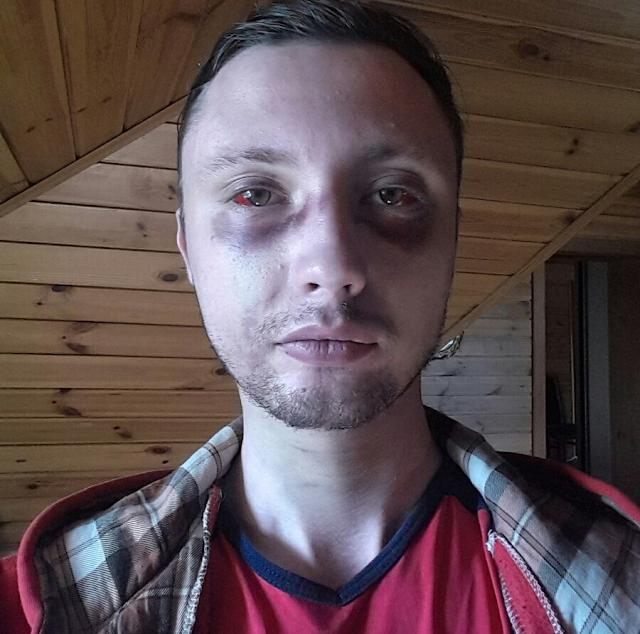 Бесконечная ночь пыток! Молодой человек попал в плен полицией бунта, когда возвращался домой!