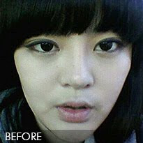 짱이뻐! - I Wish... Make Your Dream Comes True With Korean Plastic Surgery