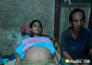 Nursri 28 tahun warga Senapan Desa Sungai Lawak harus pasrah menahan sakit, yang mana sakit yang ia derita kian hari kian parah lantaran tidak ada biaya untuk berobat. Seluruh badan Sri dari kaki sampai perut menbengkak