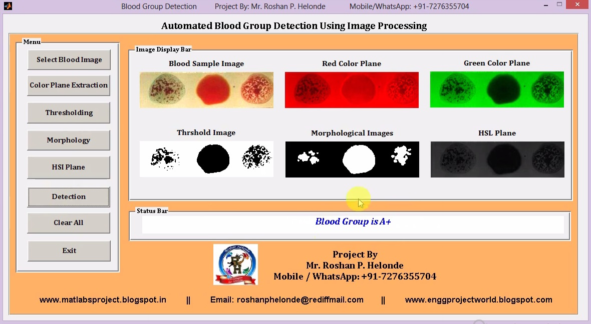 Matlab Code for Blood Group Detection and Classification Using Image