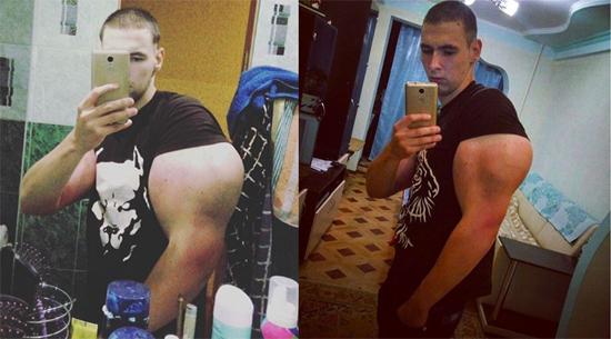 Russo injeta óleo nos bíceps para ter braços do Popeye - Img 1