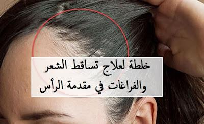 خلطة لعلاج تساقط الشعر والفراغات في مقدمة الرأس