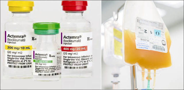 What is the best treatment for corona? Tocilizumab injection or plasma therapy