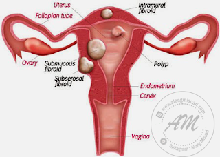 Fibroid - Cara Mencegah dan Cadangan Supplement