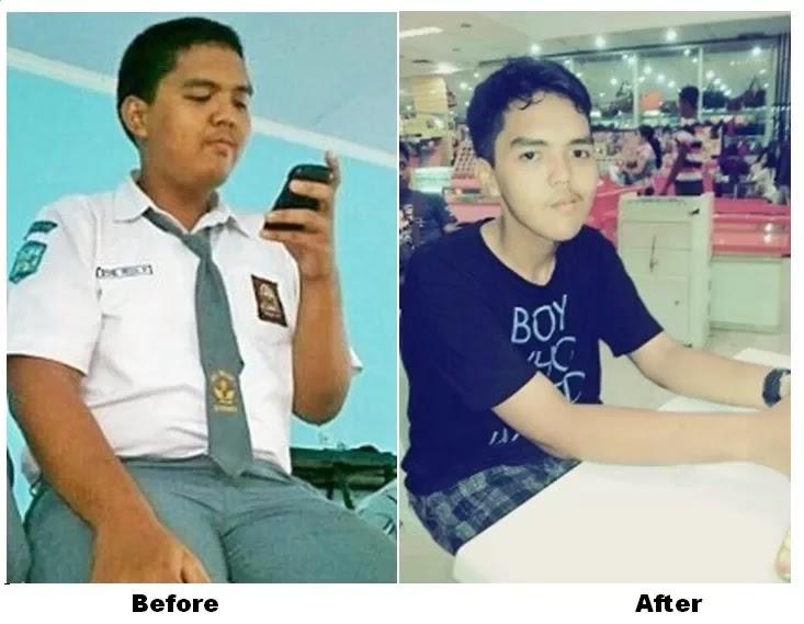 Kisah Diet Gadis Cantik Khairani Windya; Berkat Ketekunan, 51 Kg Lemak Berhasil Melayang!