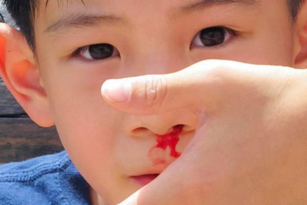 14 Penyebab dan Cara Mengatasi Mimisan Pada Anak Serta Orang Dewasa