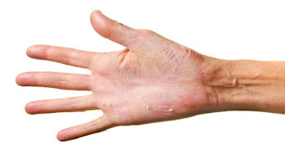 Remedies For Dry, Cracked Hands,
