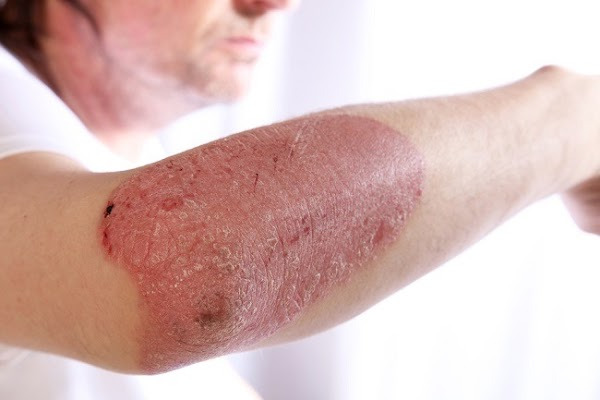 Types of Psoriasis Disease and How to Treat it