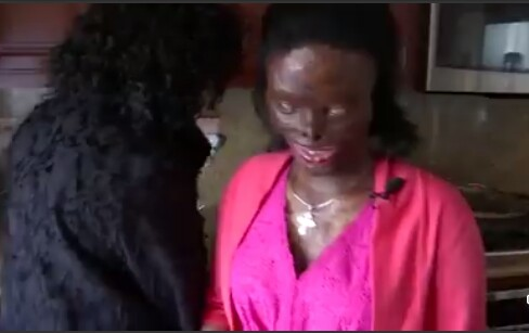 Photos: Community rally behind Ethiopian woman disfigured, blinded by acid attack by her abusive husband after she asked for a divorce