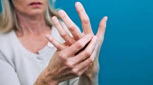اعراض الروماتويد وأسبابه وطرق االعلاج