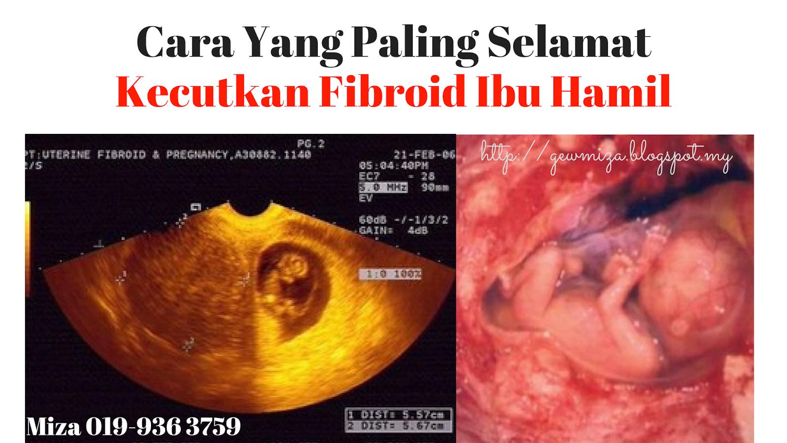 cara kecutkan fibroid yang selamat untuk ibu mengandung