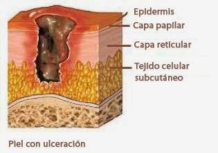 A falta de nutrientes e oxigênio na pele leva a morte das células e aparecimento das feridas