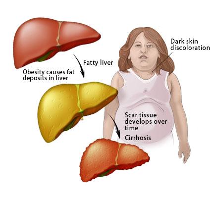 Cara Mengobati Penyakit Liver Yang Sudah Parah