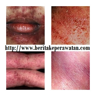 Mekanisme Terjadinya Penyakit Dermatitis